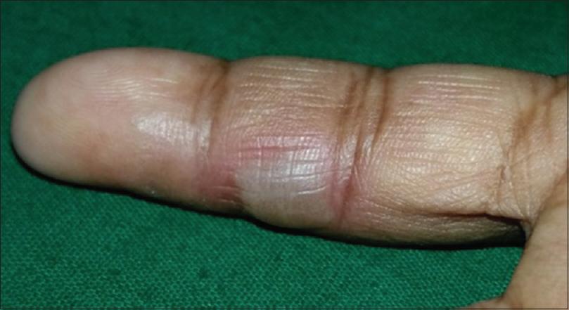 ... Sfakianakis: Fixed drug eruption, a rare side effect of fluconazole