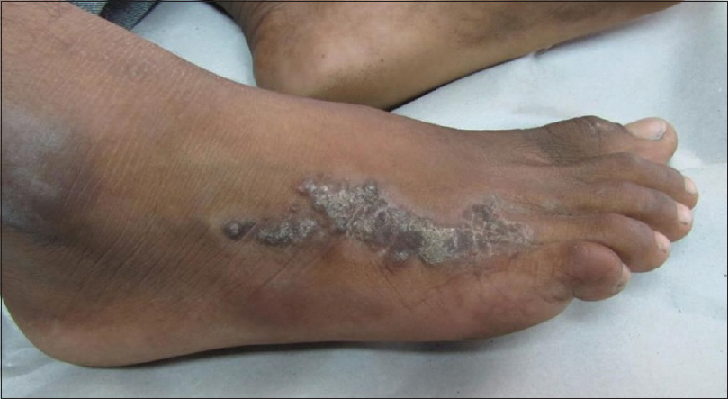 Verrucous carcinoma of the foot not your typical plantar