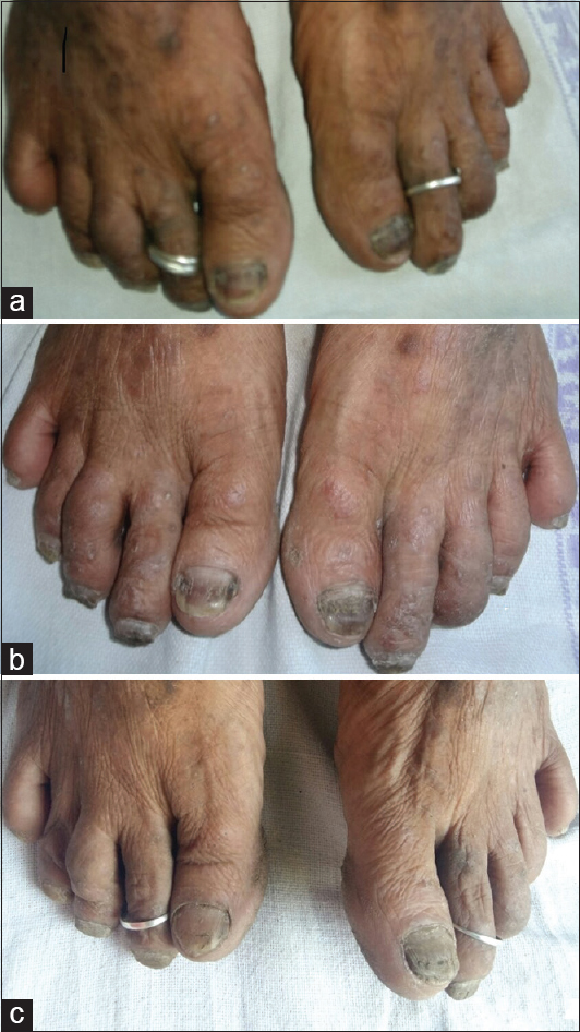 Diffuse melanonychia in a patient of chronic plaque psoriasis on ...