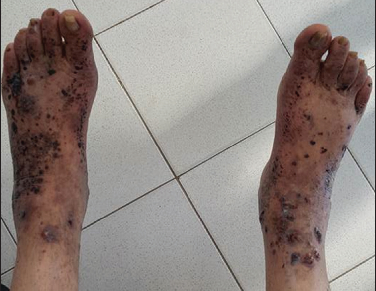 Figure 1: Multiple purpuric eruptions on the lower legs.