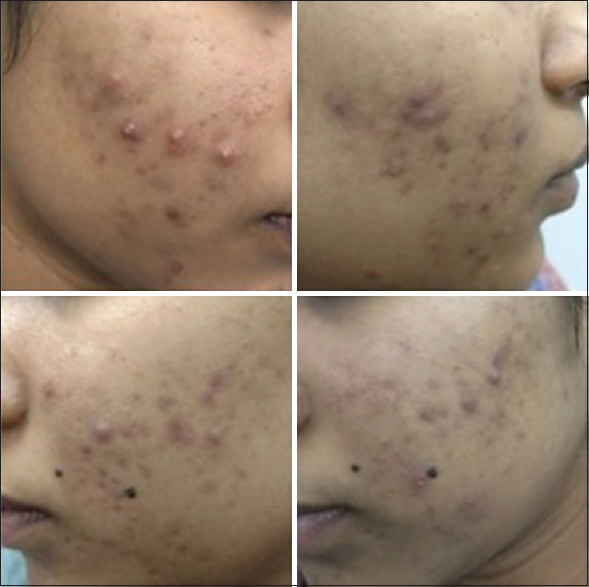 Comparison Of Efficacy Of Conventional Nonmodified Release Minocycline And Newer Extended Release Minocycline In Treatment Of Acne Vulgaris Sardesai Vr Uttamani Rr Indian J Drugs Dermatol