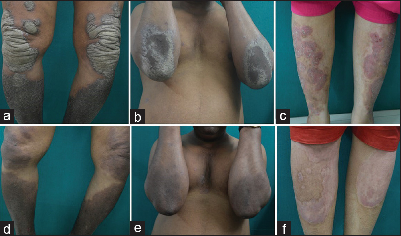 Figure 1: Improvement after 4 weeks of therapy. (a-c) Photographs of patients under study before initiation of secukinumab. (d-f) Posttreatment photographs after 4 weeks of induction therapy with secukinumab