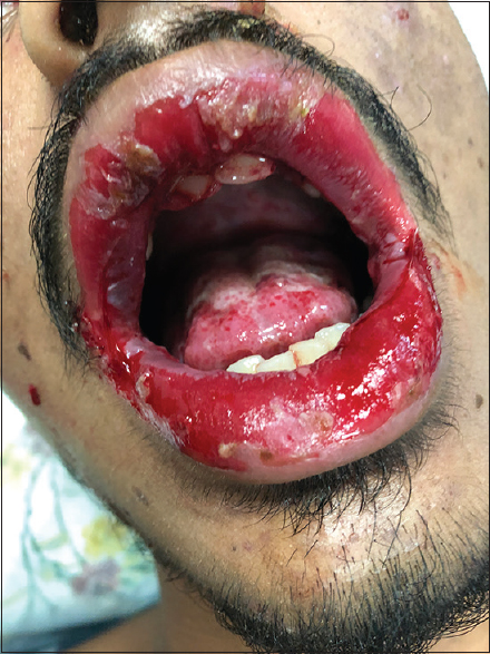 Figure 1: Erosions over both lips