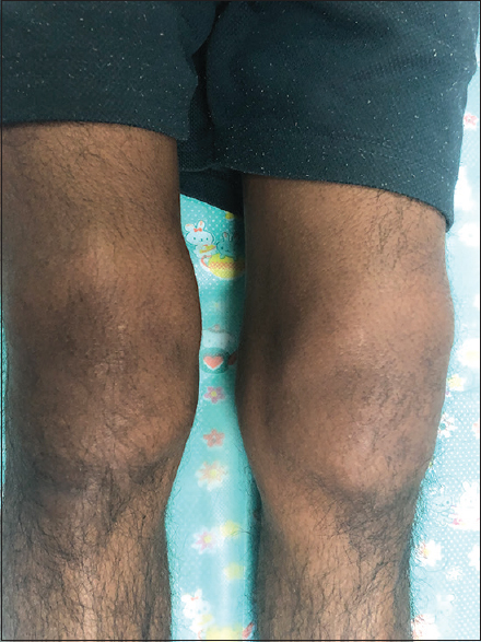 Figure 3: Bilateral knee joint swelling