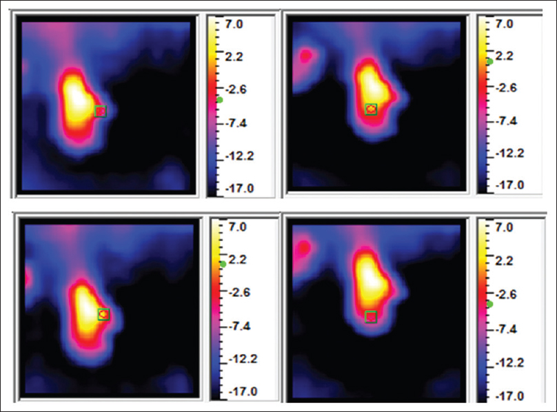 Figure 2: Infrared images of the dorsum of the right hand of one of the patients. The green box indicates the point of focus of the camera (the area of maximal thermal resolution)
