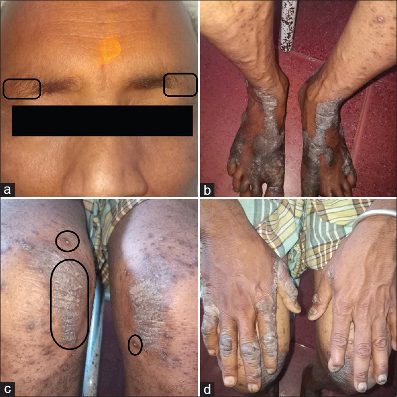 Figure 1: Pretreatment photographs of the patient (a-madarosis [black rectangle], b-psoriasiform lesions of legs, c-perforating folliculitis [black circle] with psoriasiform lesions, d-psoriasiform lesions of hands)